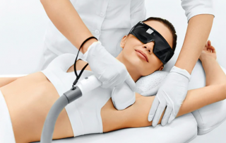 woman having IPL treatment for hair removal